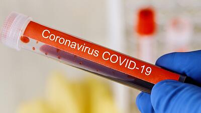 Mysterious Syndrome May Be Tied to COVID-19